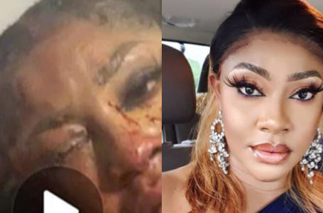 Photos of actress Angela Okorie covered in blood after gunmen riddled her car with bullets